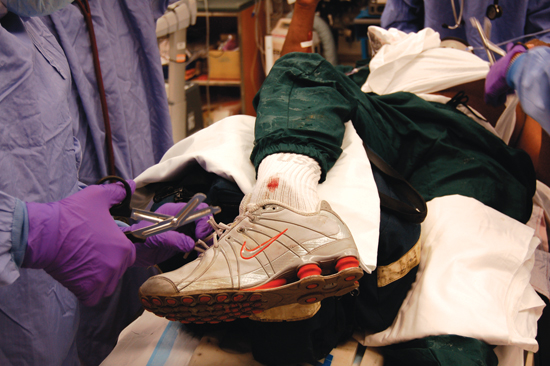 A poorly immobilized fracture can sometimes cause more damage than no splint at all.