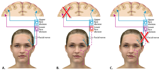 Pathway of the facial nerve