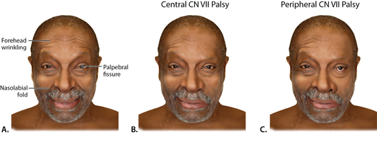 Patterns of facial weakness