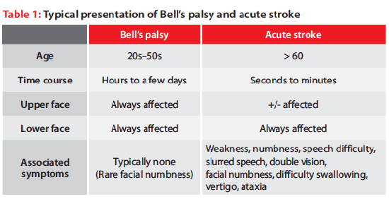 Typical presentation of Bell's palsy and acute stroke