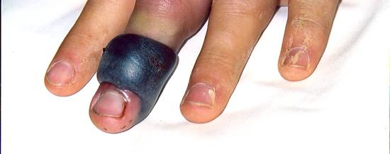 Copperhead bite to long finger.