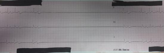 Patient's ECG strip