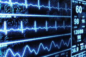 Monitoring Technology has Potential for Patient Outcomes
