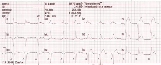 Ventricular paced rhythm