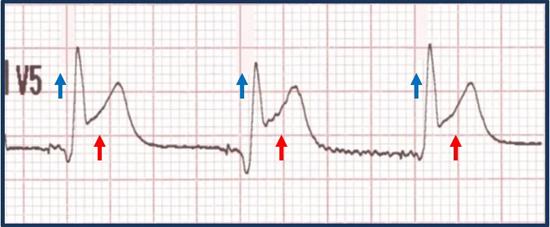 Concordance (ST-segment elevation ≥ 1 mm)