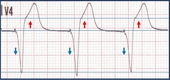 Excessive discordance (ST-segment elevation ≥ ¼ depth of S wave)