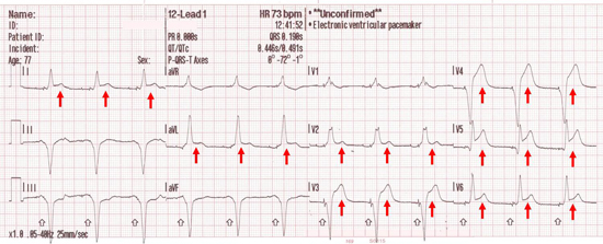 LAD occlusion pattern