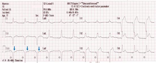 Reciprocal change in lead III