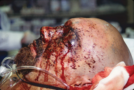 EMS blast injury response in MCIs