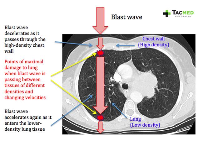 CT scan of blast injury
