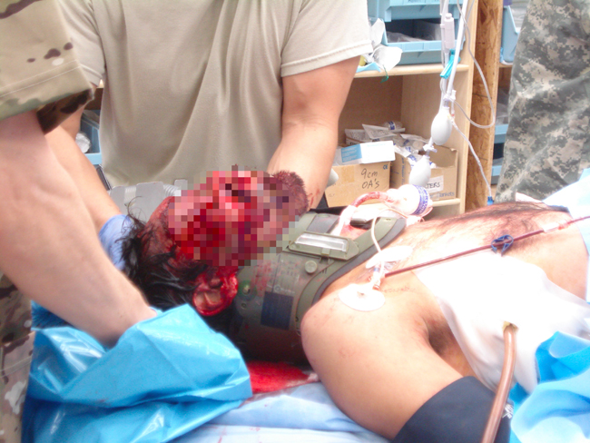 Facial burns and trauma in an IED casualty requiring surgical airway. Chest tube is also in place for penetrating chest injury.