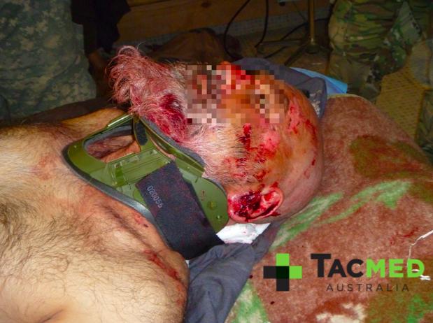 IED blast casualty bleeding from a ruptured left eardrum