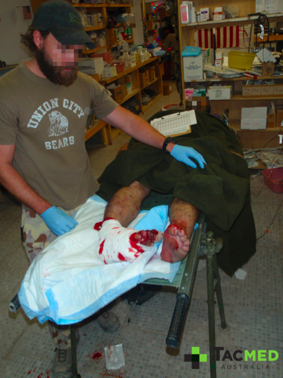 Assessing lower limb injuries of a casualty from an IED blast in an unarmored vehicle.