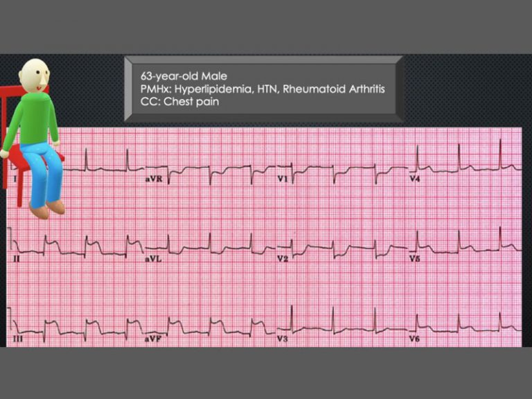 ECG Consult: 63yo Male Experiencing Chest Pain