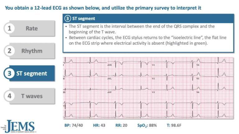 ECG Consult: 77yo Nursing Home Resident with Shortness of Breath and Lightheadedness