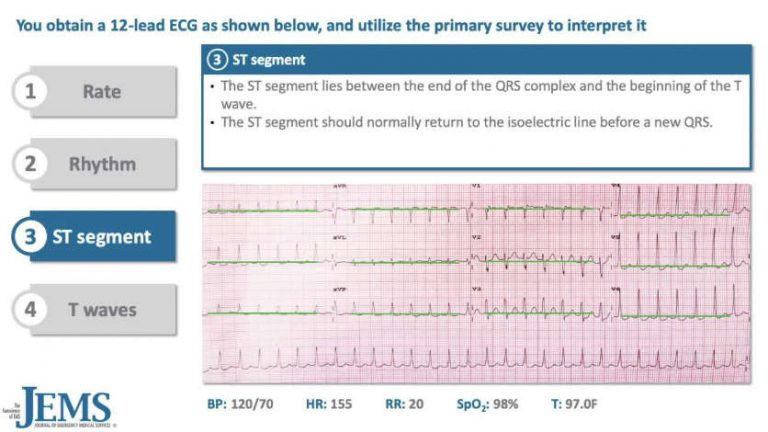 ECG Consult: 23yo Construction Worker with Rapid Heartbeat and Lightheadedness