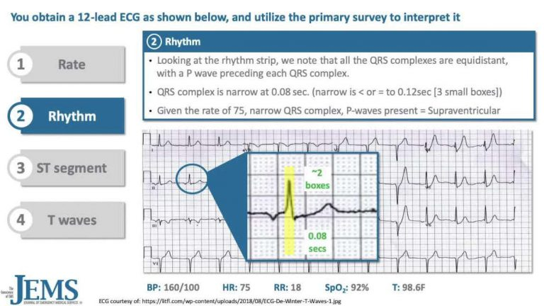 ECG Consult: 46yo Male Banker with Sudden Onset Left-sided Chest Pain