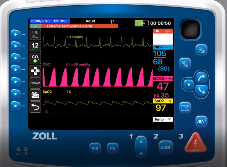 How to Use Capnography to Titrate CPAP