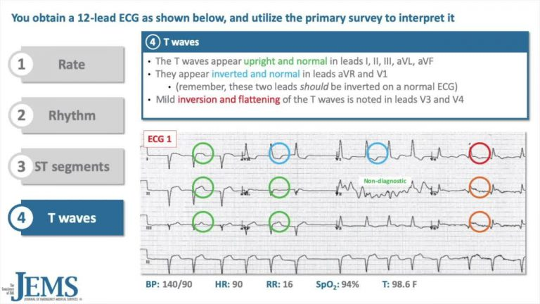 ECG Consult: 48yo Female Electrician Complaining of Indigestion