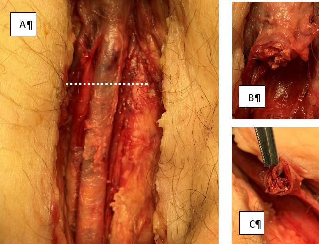 Bleeding Management of the Severely Injured