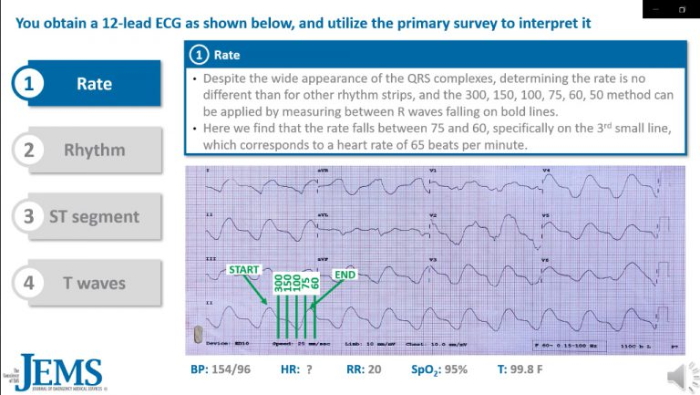 ECG Consult: 50yo Male Presents with Weakness, Nausea, Vomiting and Shortness of Breath