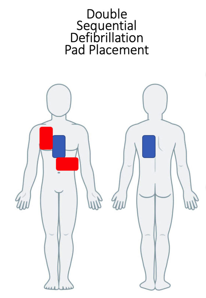 Figure 1: This is an image demonstrating DSD pad placement. Standard anterolateral placement is shown in red with the second set of pads in an anterioposterior position in blue. For more detailed information on this defibrillation strategy, see the DOSE-VF trial by Cheskes et al.36